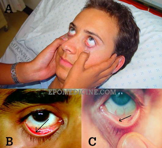 Anemia in eye