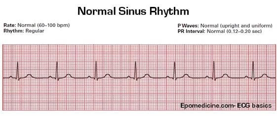 ECG-sinus-rhythm