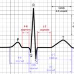 ECG interval