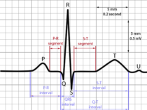 Basics of ECG- Interpretation of waves and intervals