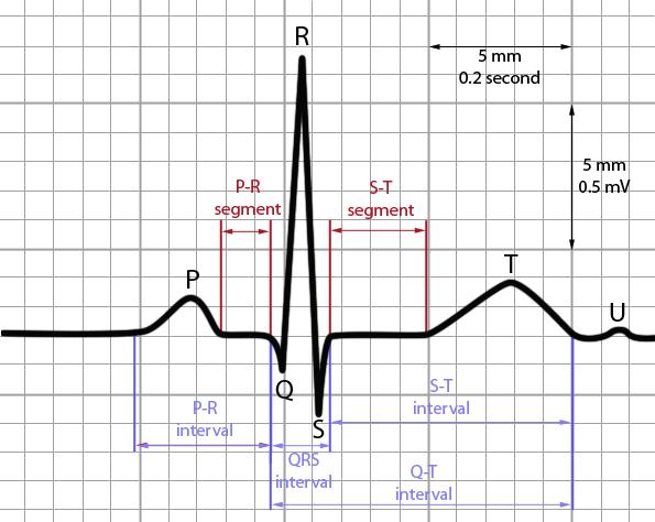 ECG_interval