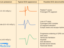 ECG changes in Hyperkalemia