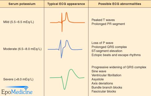 hyperkalemia ecg