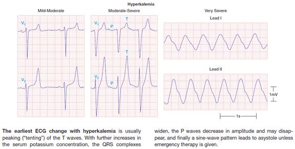Hyperkalemia ECG severity
