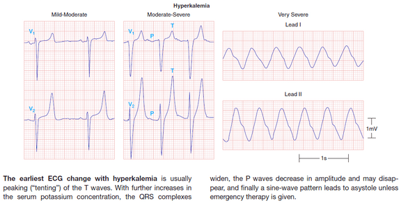 Hyperkalemia ECG severity  sc 1 st  Epomedicine & ECG changes in Hyperkalemia | Epomedicine
