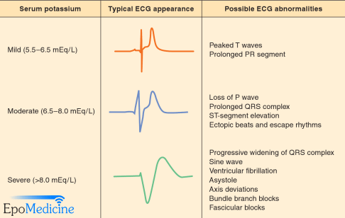 ecg changes in hyperkalemia | epomedicine, Skeleton