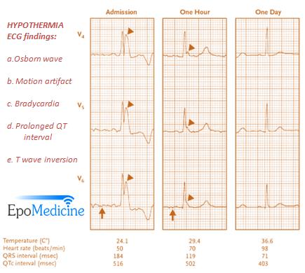 J wave hypothermia ECG