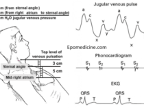 Jugular Venous Pulse and Pressure (JVP) Examination
