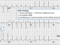 ECG changes in Pulmonary embolism