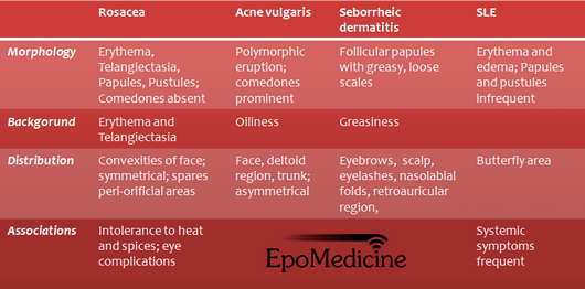 Rosacea Etiopathogenesis Diagnosis And Management Epomedicine