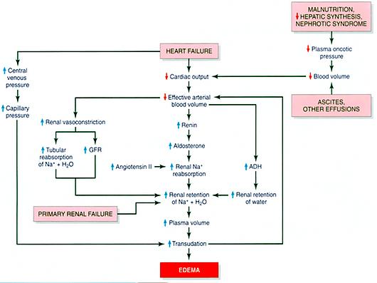 Generalized edema