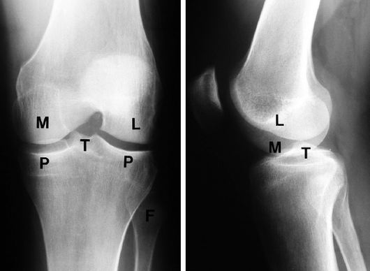 Knee AP lateral Xray