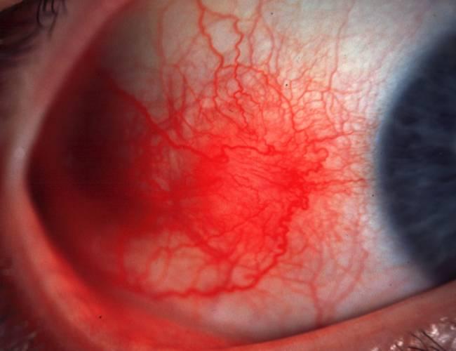 Nodular Epislceritis