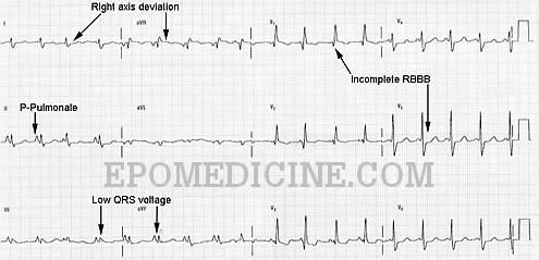 Emphysema ECG