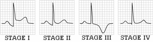 ECG stages pericarditis