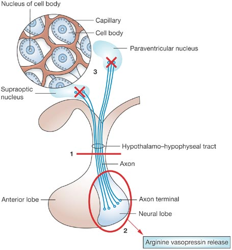 Diabetes insipidus pathophysiology