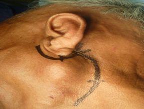 Parotid swelling