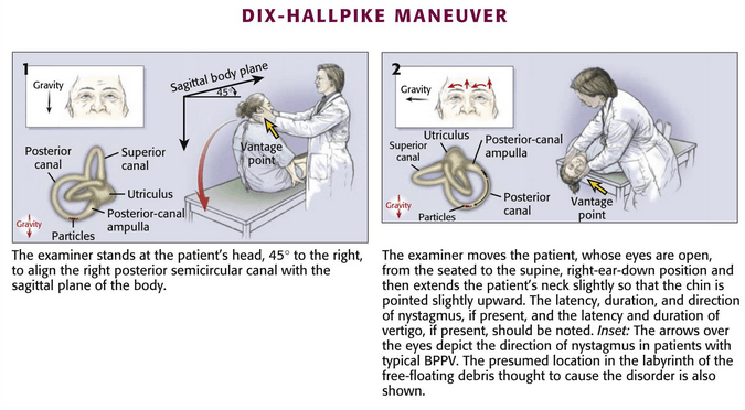 Vestibular examination : Dix-Hallpike Maneuver for BPPV