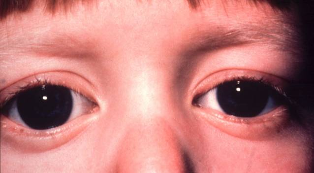 Ophthalmology Spot Diagnosis: Buphthalmos