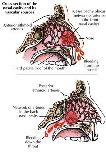 Anterior and posterior epistaxis