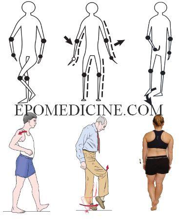 gait abnormalities patterns