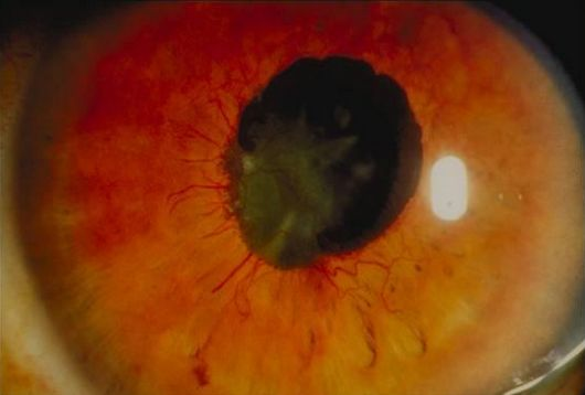 Ophthalmology spot diagnosis : Rubeosis Iridis