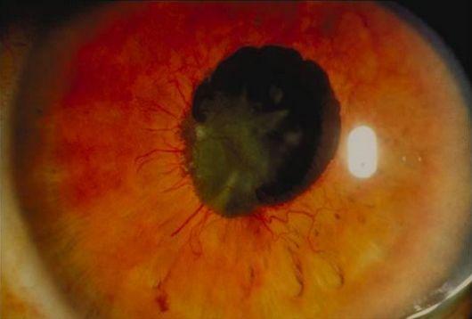 rubeosis iridis neovascular glaucoma