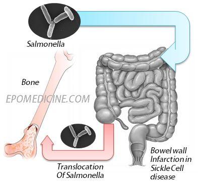 salmonella osteomyelitis sickle cell