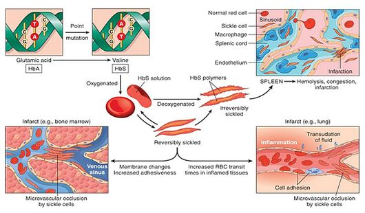 sickle cell anemia pathogenesis