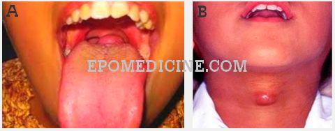Thyroglossal Duct Cyst