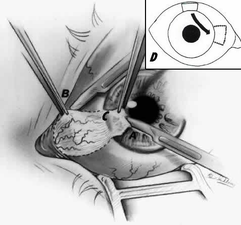 Pterygium excsion bare sclera