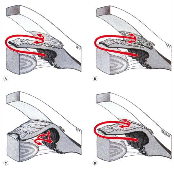 Secondary glaucoma mechanism