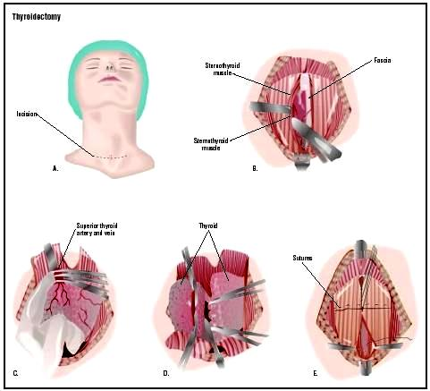 Thyroidectomy procedure