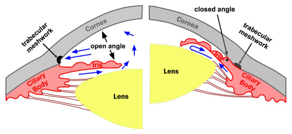 open-closed angle glaucoma