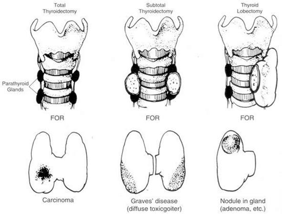 thyroidectomy types