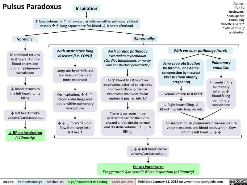 Pulsus paradoxus mechanism