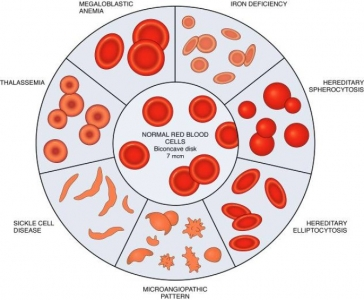 anemia morphology