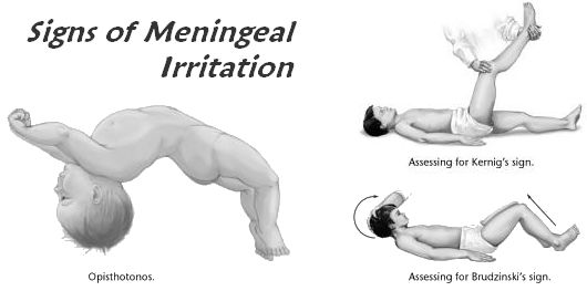 signs of meningeal irritation