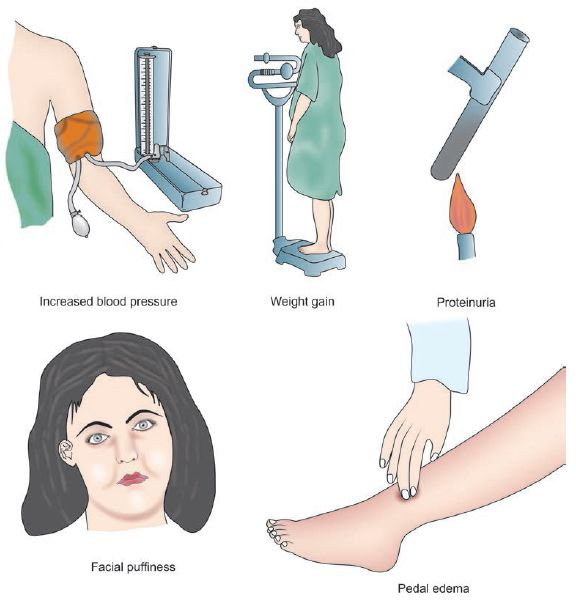 Approach to hypertension in pregnancy