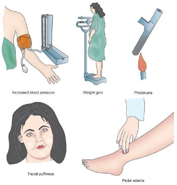 pre-eclampsia features