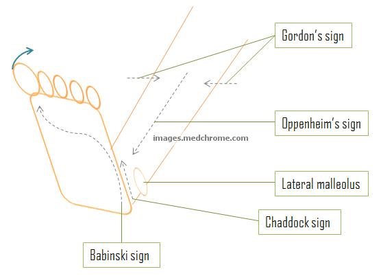 Superficial-pathological-reflexes