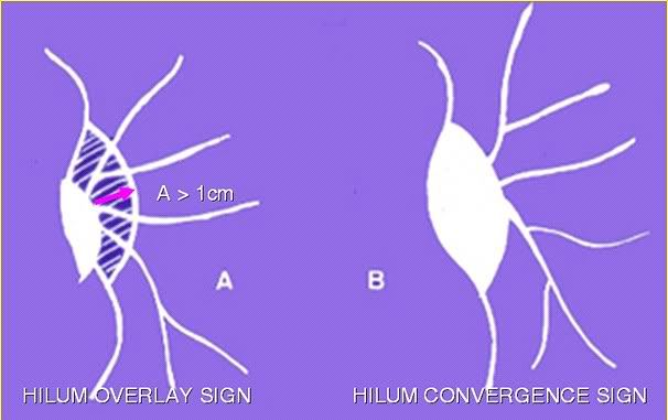 hilum signs