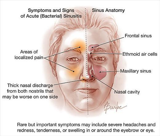 Acute rhinosinusitis (ARS)