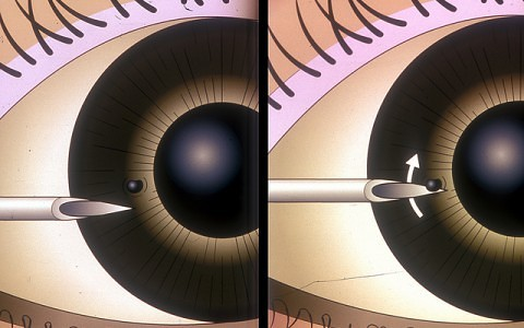 corneal foreign body removal