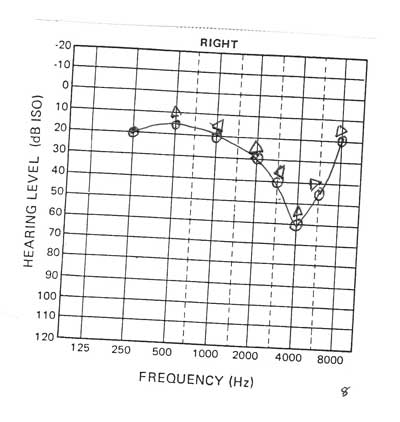 Pure Tone Audiogram and Interpretation
