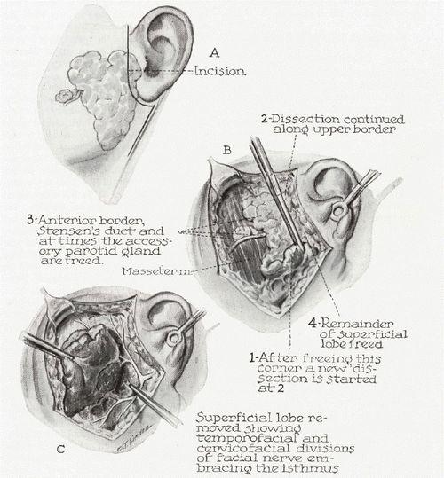 parotidectomy steps