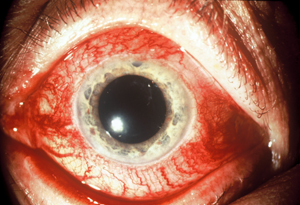 Acute Red Eye : Simplified Approach
