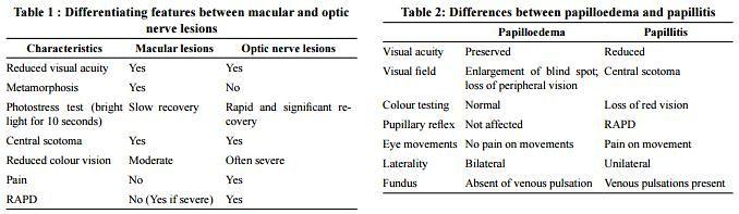 papilledema vs papillitis