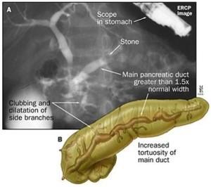 ERCP in pancreatitis