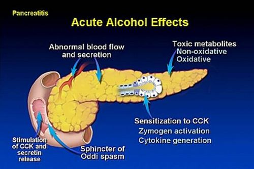 alcoholic pancreatitis mechanism